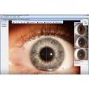 CID NT - Analysesoftware (Computerunterstützte-Iris-Diagnostik)