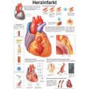Poster Herzinfarkt Format 50x70cm *